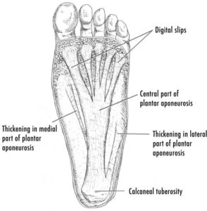 Plantar fasciitis is irritation of the plantar fascia as it attaches to the calcaneal tuberosity, or heel bone. (https://en.wikipedia.org/wiki/Plantar_fasciitis)
